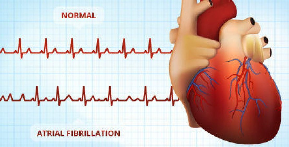 Opioid use may increase risk of DANGEROUS heart rhythm disorder