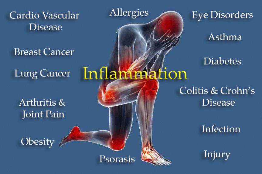 The Dangers & Fixes For Disease Causing Inflammation